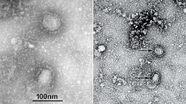 Ilmuwan Mesir Ali Mohamed Zeki Penemu Virus Corona